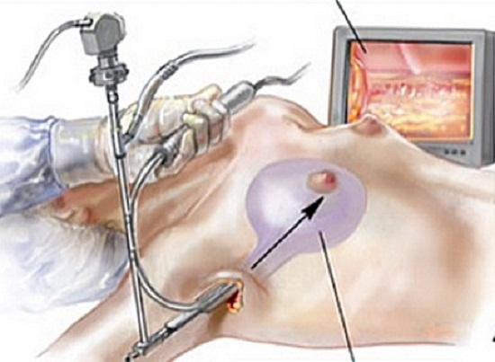 Các ca nâng ngực đường nách thường mất nhiều thời gian hơn