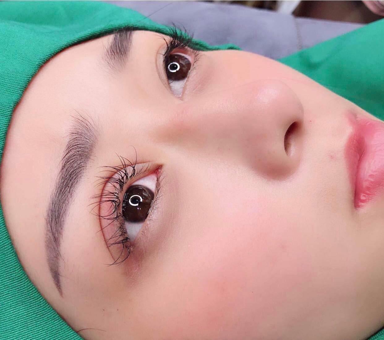 Cắt mí mắt chỉ là 1 tiểu phẫu nhỏ nhưng lại mang đến hiệu quả thẩm mỹ rất cao