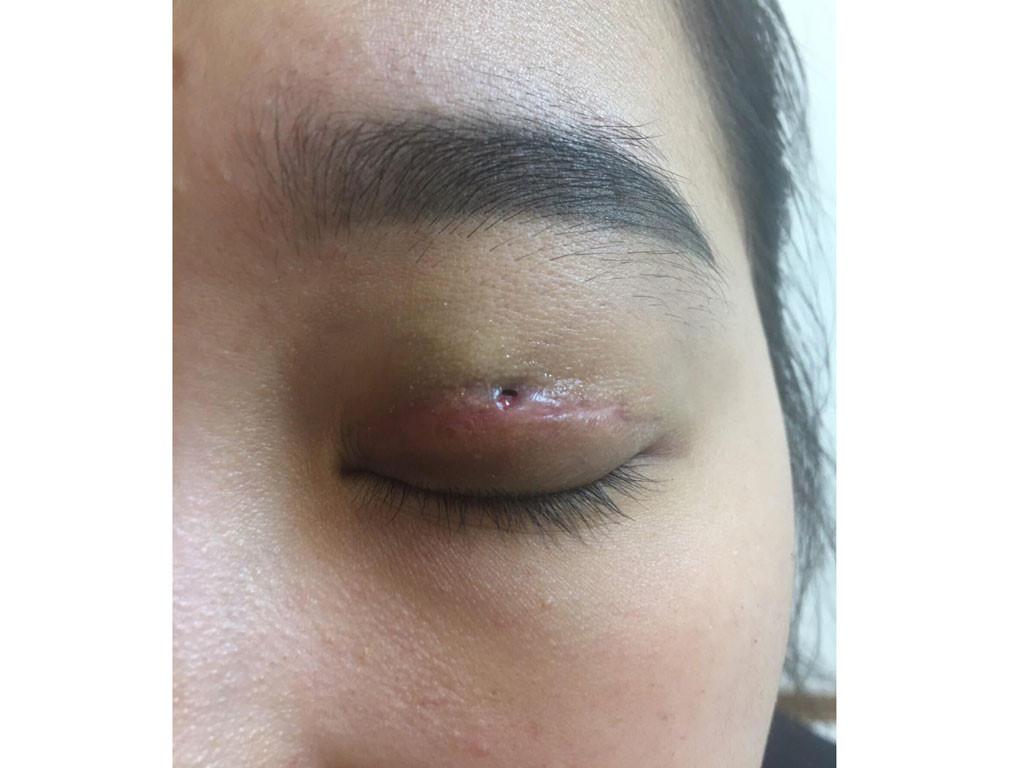 Hiện tượng mắt bị nhiễm trùng sau khi cắt mí ở nơi không chất lượng
