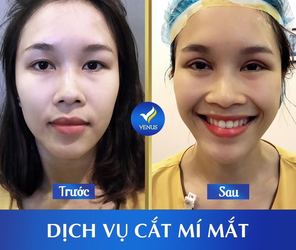 Kết quả cắt mí mắt tại TMV Quốc tế Venus