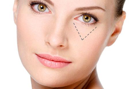 Lấy bọng mỡ mắt giúp đôi mắt trông trẻ trung hơn