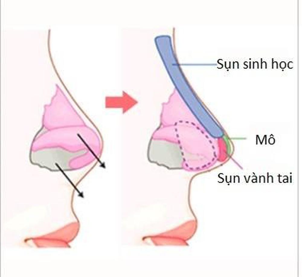 Mô phỏng vị trí đặt sụn vành tai khi nâng mũi