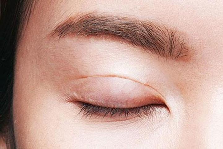 Một trường hợp cắt mí mắt để lại sẹo