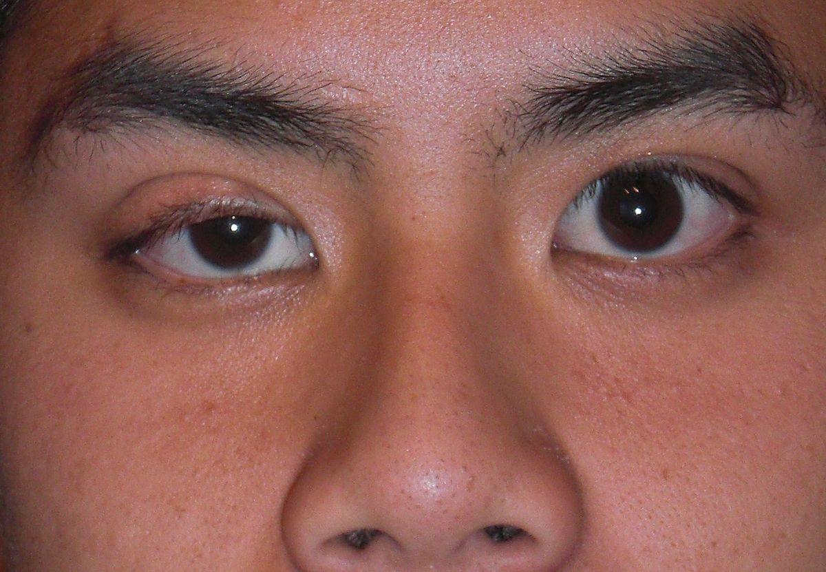 Cắt mí mắt là 1 trong những loại hình thẩm mỹ phổ biến hiện nay
