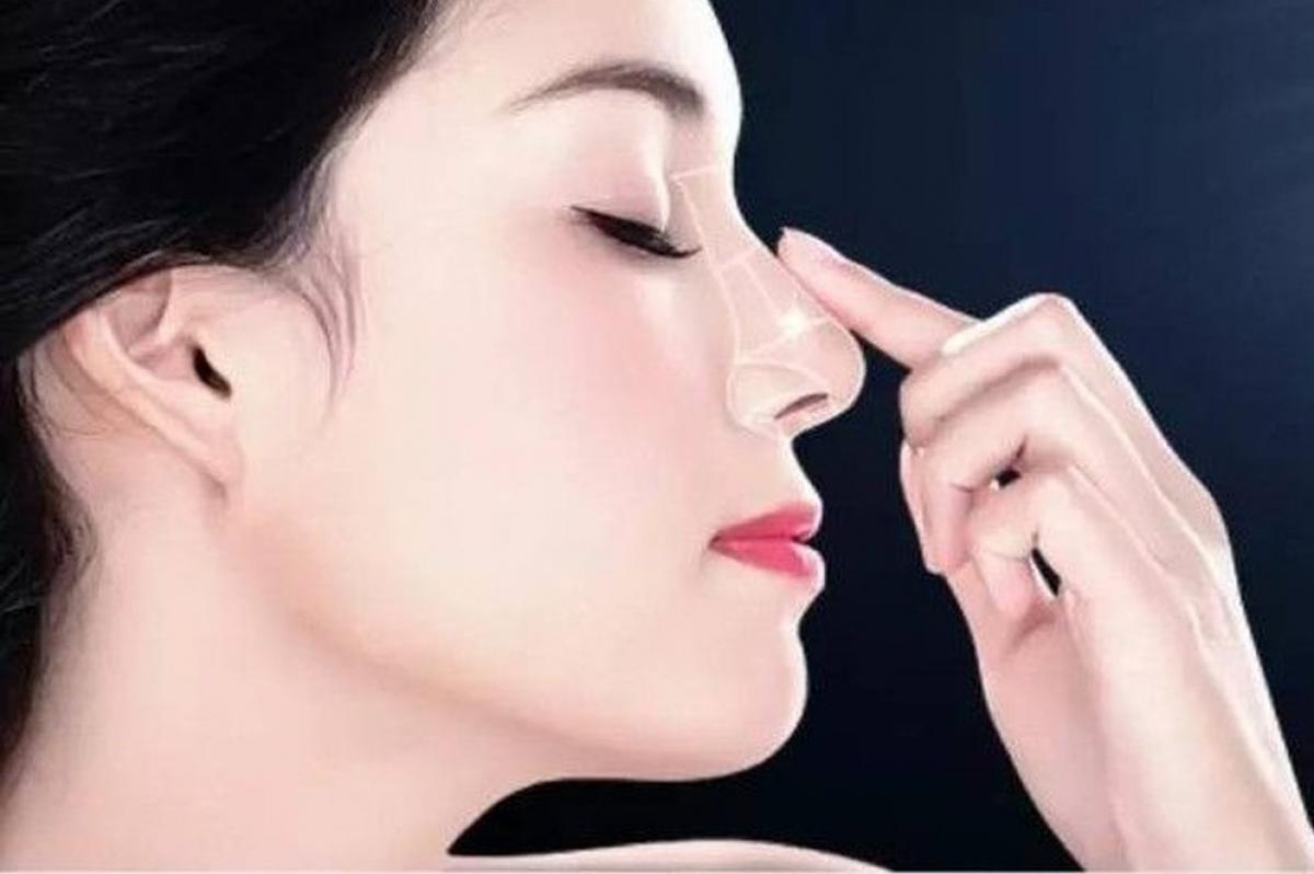 Nâng mũi bằng tiêm filler hầu như không gây đau và không để lại sẹo