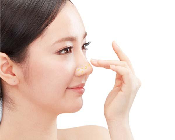 Nâng mũi không phẫu thuật có khả thi không?