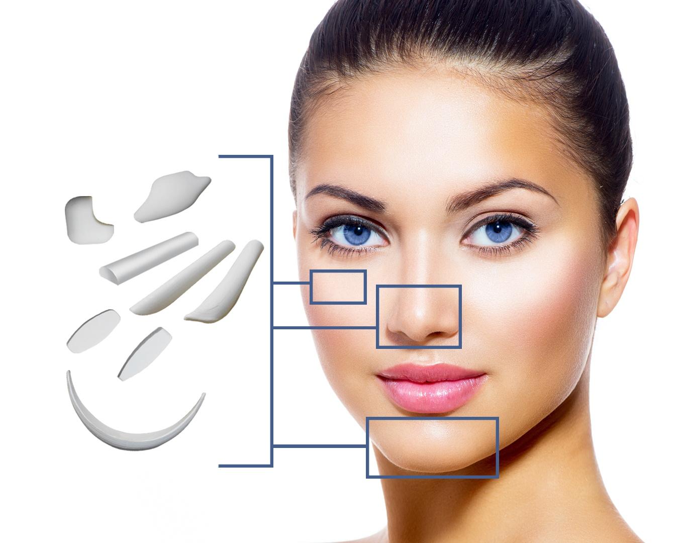 Nâng mũi Vesform sử dụng sụn sinh học EPTFE kết hợp sụn tự thân