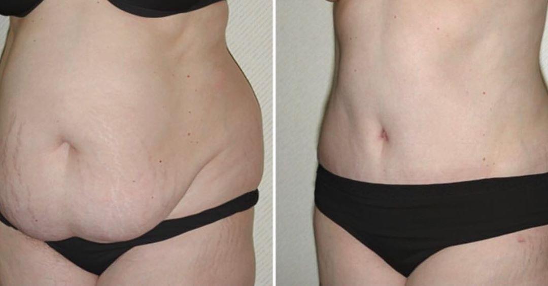 Phẫu thuật tạo hình thành bụng là cứu cánh cho những chị em có vòng 2 chùng nhão, chảy xệ