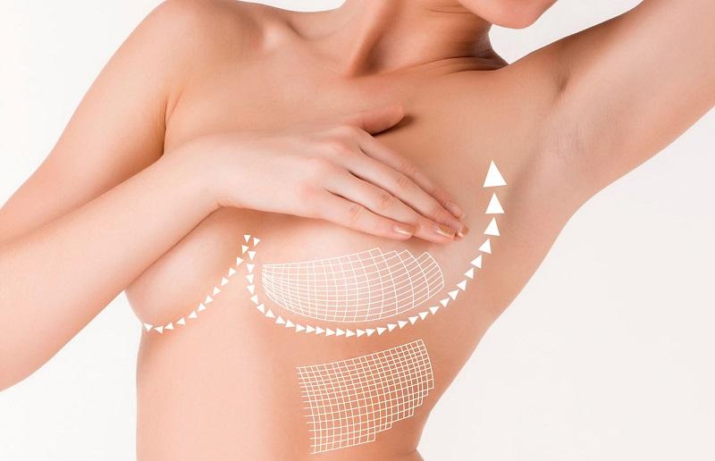 Phương pháp nâng ngực nội soi tại VTM quốc tế Venus