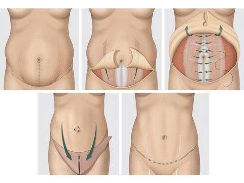Quá trình phẫu thuật tạo hình thành bụng