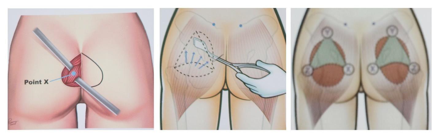Nâng mông nội soi được bao lâu còn phụ thuộc vào quy trình đảm bảo