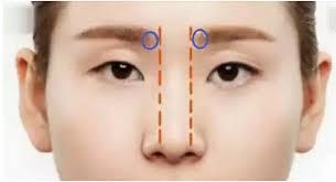 Sở hữu cánh mũi thon gọn, cân đối sau khi phẫu thuật