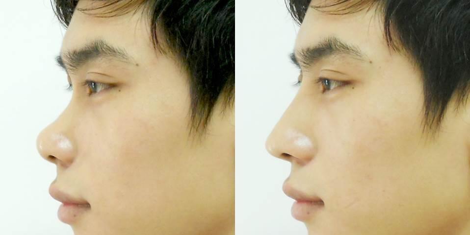 Sống mũi là bộ phận cần được chú trọng khi thực hiện sửa mũi nam
