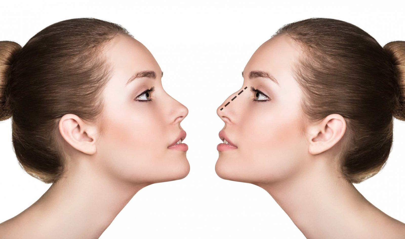 Sửa mũi hỏng sau phẫu thuật để tự tin hơn