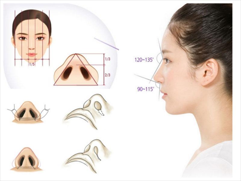 Thu gọn cánh mũi có mức độ xâm lấn thấp, không gây đau đớn trong khi thực hiện