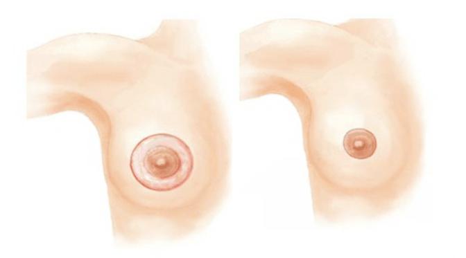 Thu quầng ngực đang là 1 trong dịch vụ thẩm mỹ ngực được chị em quan tâm