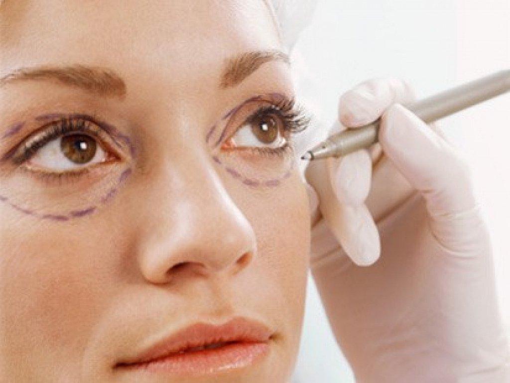 Thực hiện bóc mỡ bọng mắt ở cơ sở uy tín để đảm bảo an toàn, hiệu quả cao