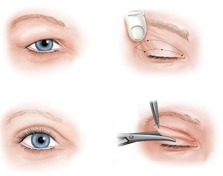 Tổng quát quy trình cắt mí mắt