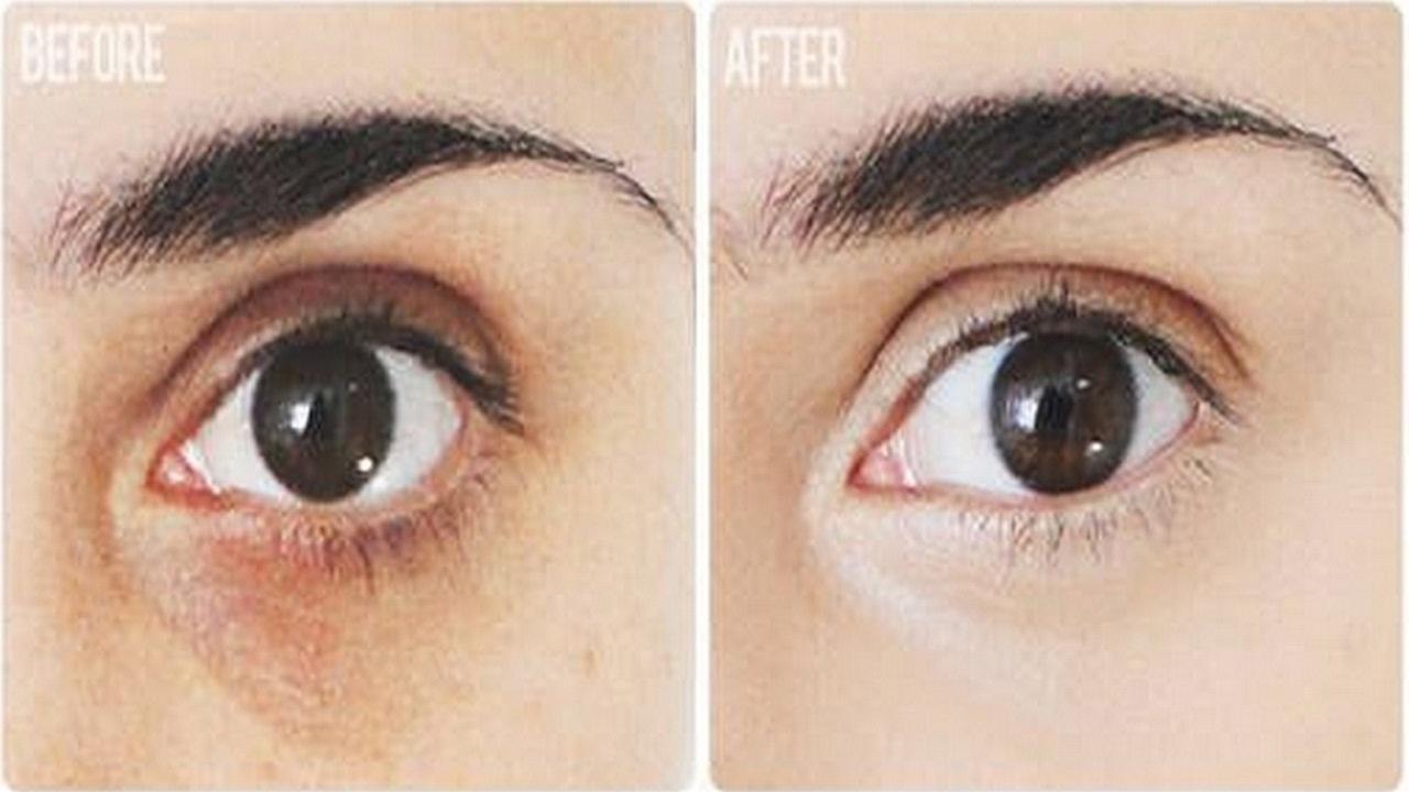 Trẻ hơn tới 10 tuổi sau khi cắt bọng mắt dướiTrẻ hơn tới 10 tuổi sau khi cắt bọng mắt dưới