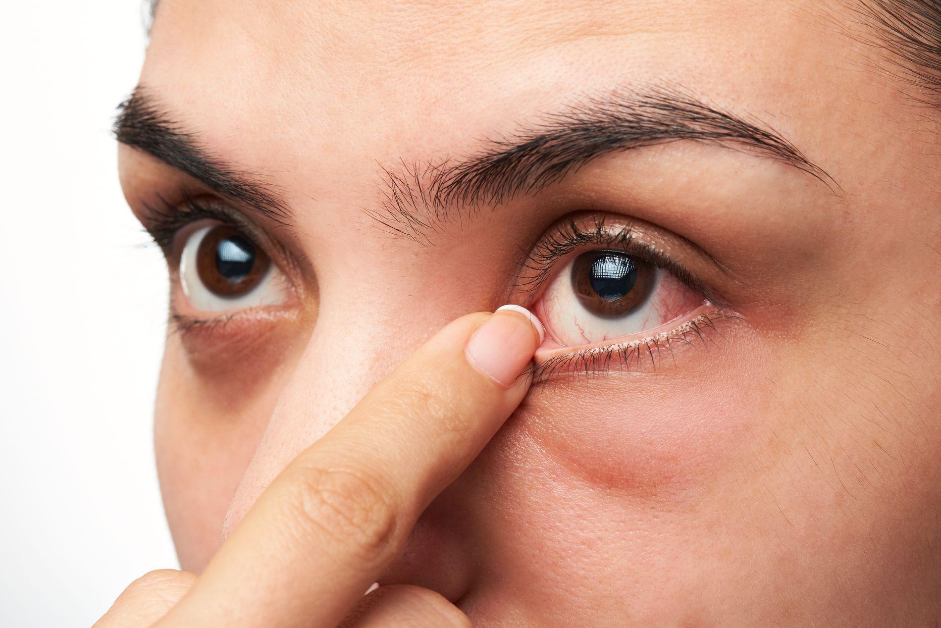 Cắt mí phù hợp với nhiều tình trạng mắt khác nhau