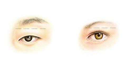 Cắt mí mini deep phù hợp với những bạn gái có đôi mắt 1 mí, ít da chùng, mỡ thừa