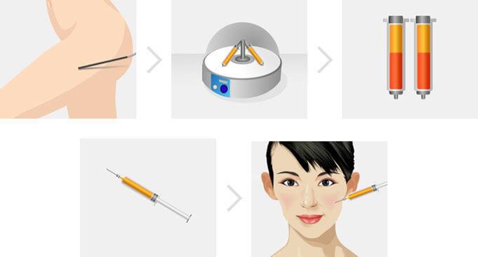 Mô phỏng quy trình cấy mỡ tự thân vào mặt