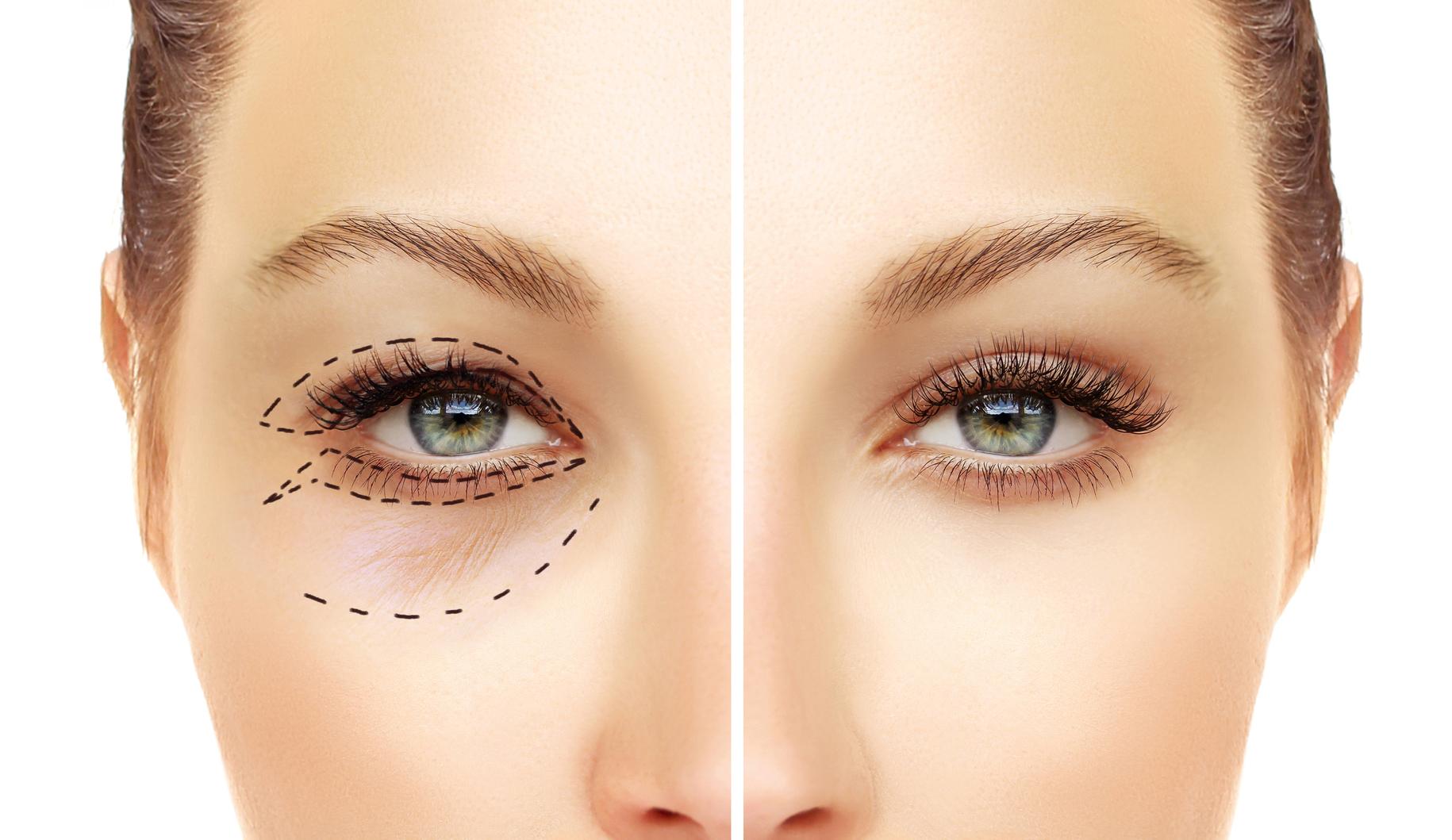 Cắt mí giúp khắc phục cùng lúc nhiều khuyết điểm trên mắt