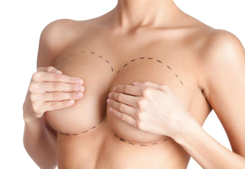 Nâng ngực nội soi được nhiều chị em ưu ái lựa chọn trong những năm gần đây
