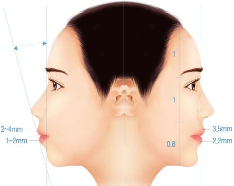Độn cằm giúp khắc phục cằm ngắn, cằm lẹm hiệu quả