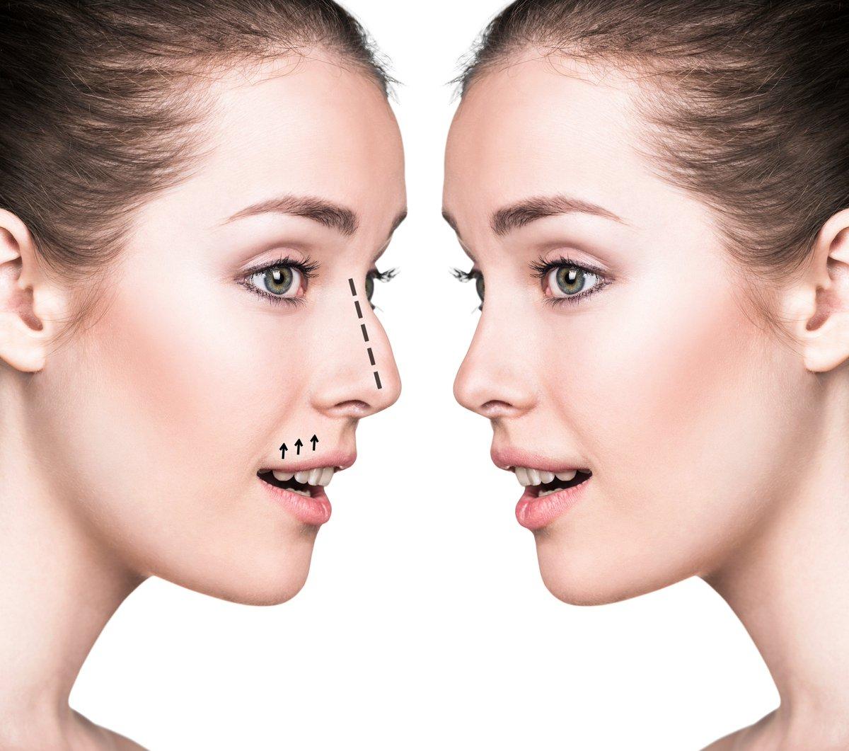 Nâng mũi cấu trúc khắc phục toàn bộ trụ mũi