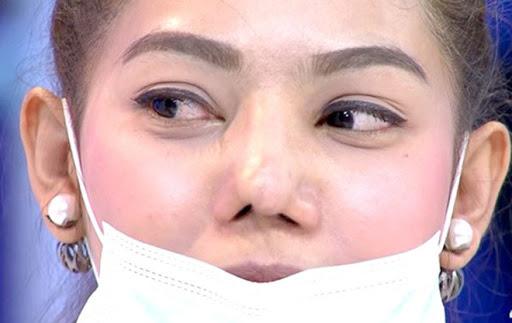 Để sửa lại mũi đã phẫu thuật, các bạn cần phải đợi các mô mũi bên trong lành hẳn