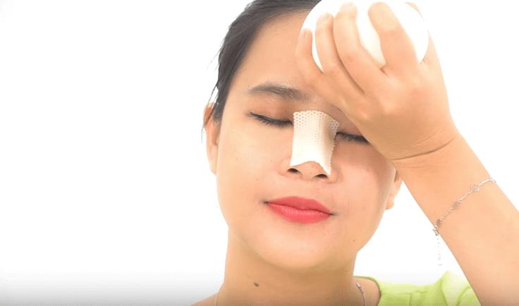 Chăm sóc sau nâng mũi đúng cách giúp mũi giảm sưng đau và nhanh hồi phục