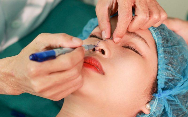 Vì đã được tiêm tê nên nâng mũi Vesform không gây cảm giác đau hay khó chịu