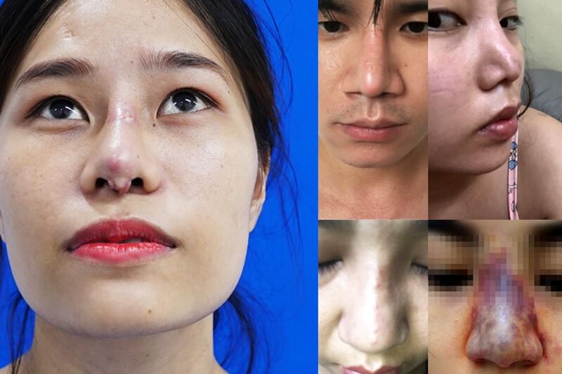 Tái phẫu thuật nâng mũi áp dụng cho những trường hợp sửa mũi hỏng