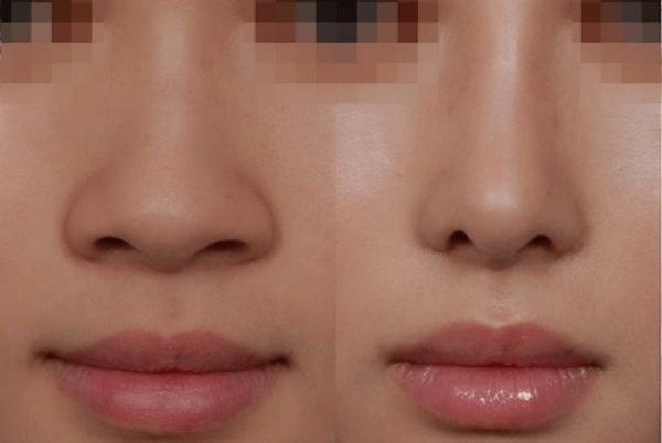 Thu nhỏ đầu mũi giúp khắc phục nhược điểm đầu mũi to thô