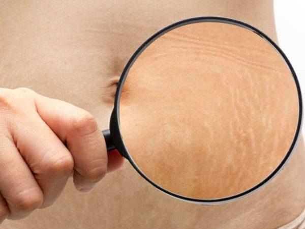 Thực hư hiệu quả khi trị rạn da tại nhà