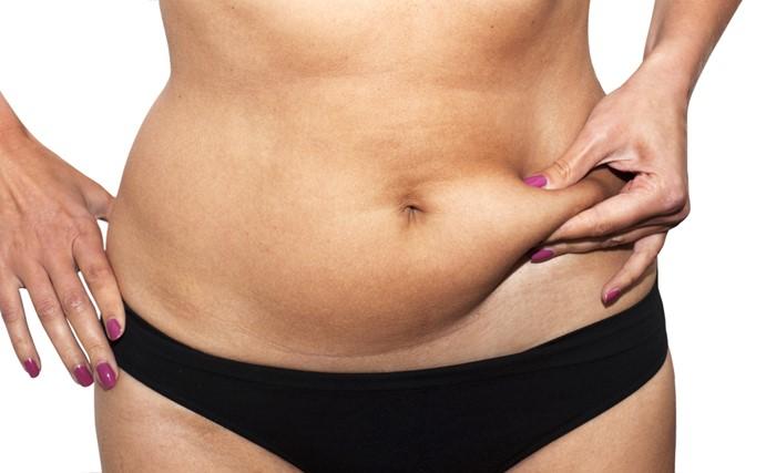 Hút mỡ bụng không gây ảnh hưởng đến các cơ quan nội tạng trong ổ bụng