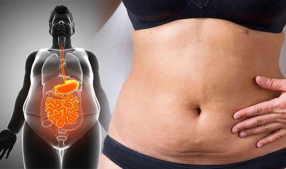 Hút mỡ bụng giúp loại bỏ lớp mỡ thừa nằm ở vùng bụng ra ngoài