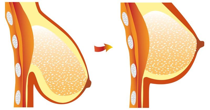 Phương pháp treo sa ngực trễ là gì?
