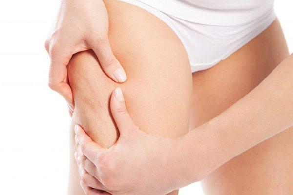 Lưu ý để phòng ngừa tình trạng da đùi bị rạn