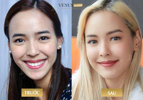 Hình ảnh khách hàng trước và sau khi thực hiện căng da mặt không phẫu thuật tại Venus by Asian