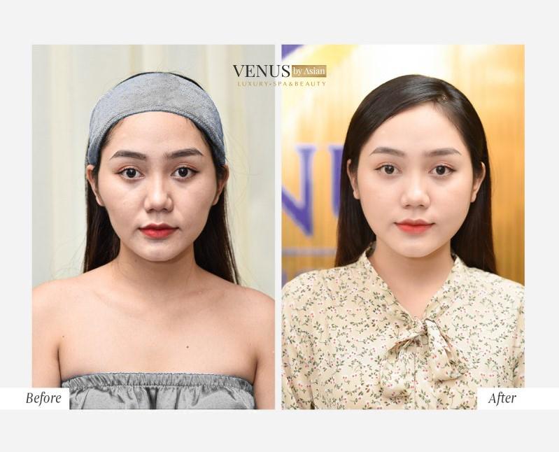 Hiệu quả của khách hàng sau khi thực hiện dịch vụ tại Venus by Asian