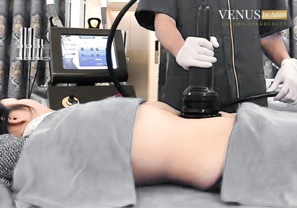 Công nghệ laser Ultrapulse giúp trị rạn da đùi hiệu quả