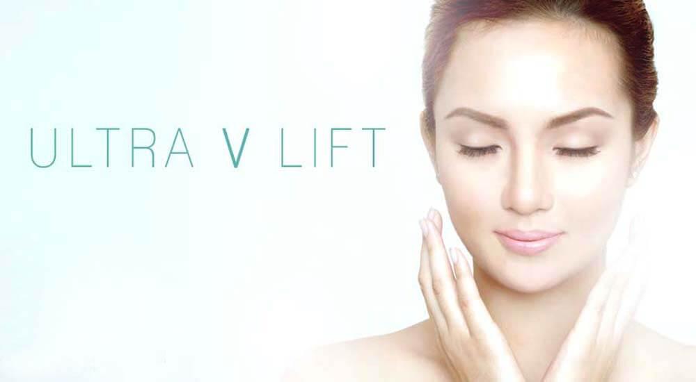 Công nghệ căng da mặt bằng chỉ Ultra V Lift