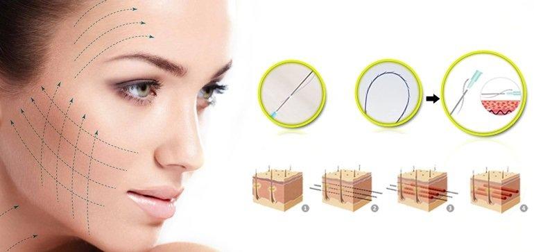 Căng da mặt bằng chỉ là phương pháp sử dụng chỉ sinh học tạo ra liên kết cơ mặt và cơ bám