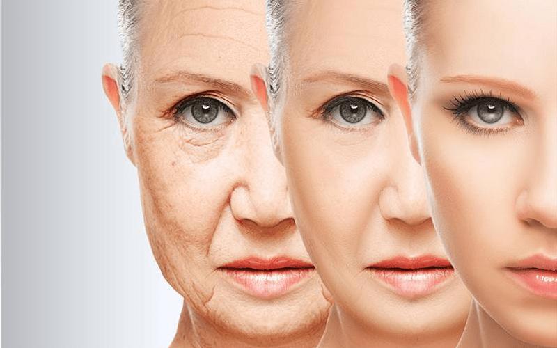 Căng da mặt bằng chỉ bao lâu hồi phục