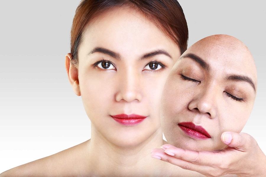 Thời gian hồi phục nhanh chóng sau khi căng da mặt bằng chỉ sinh học