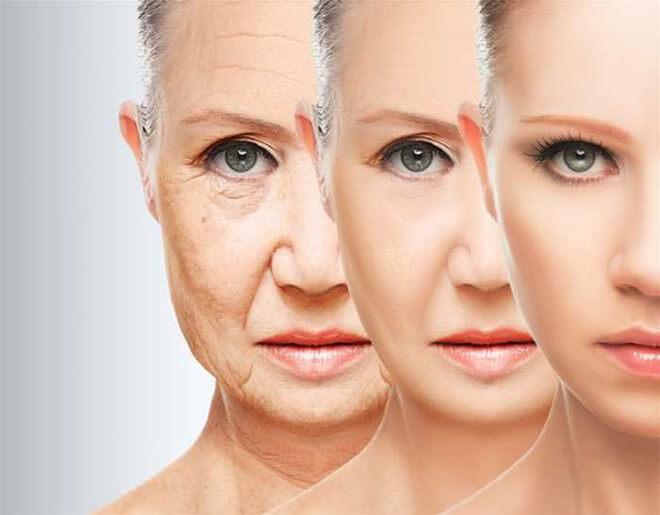 Căng da mặt bằng chỉ có tốt không?