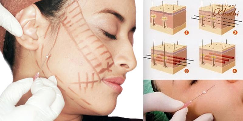 Căng da mặt bằng chỉ collagen có tốt không?