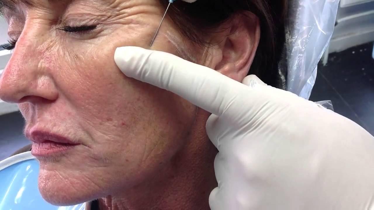 Căng da mặt bằng chỉ không tiêu có hại không?